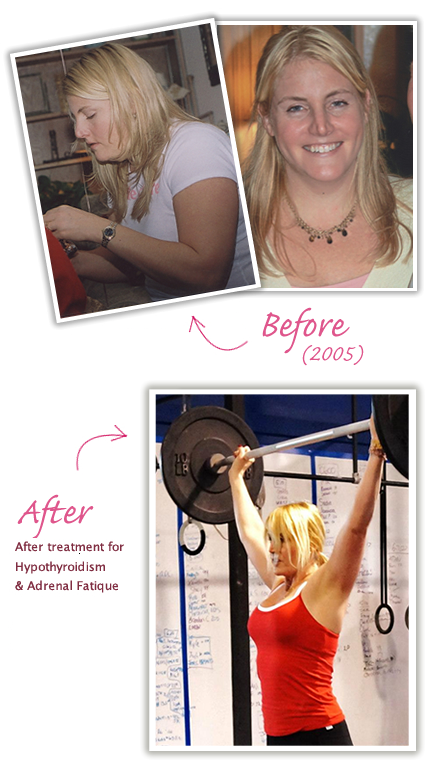My Success Story with Hypothyroidism and Weight Loss | Miss Lizzy