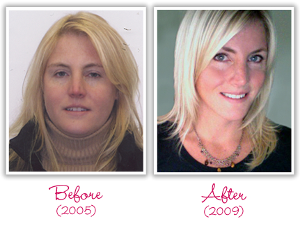 My Success Story with Hypothyroidism