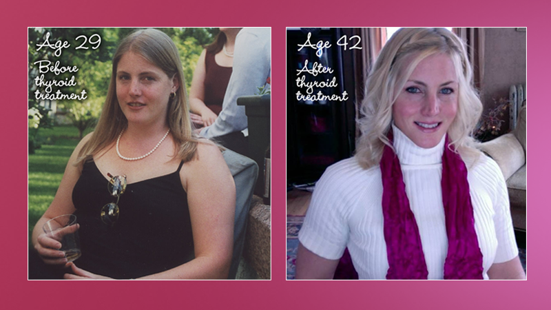My Success Story with Hypothyroidism and Weight Loss