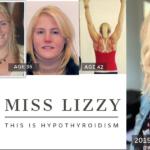 Miss Lizzy hypothyroidism