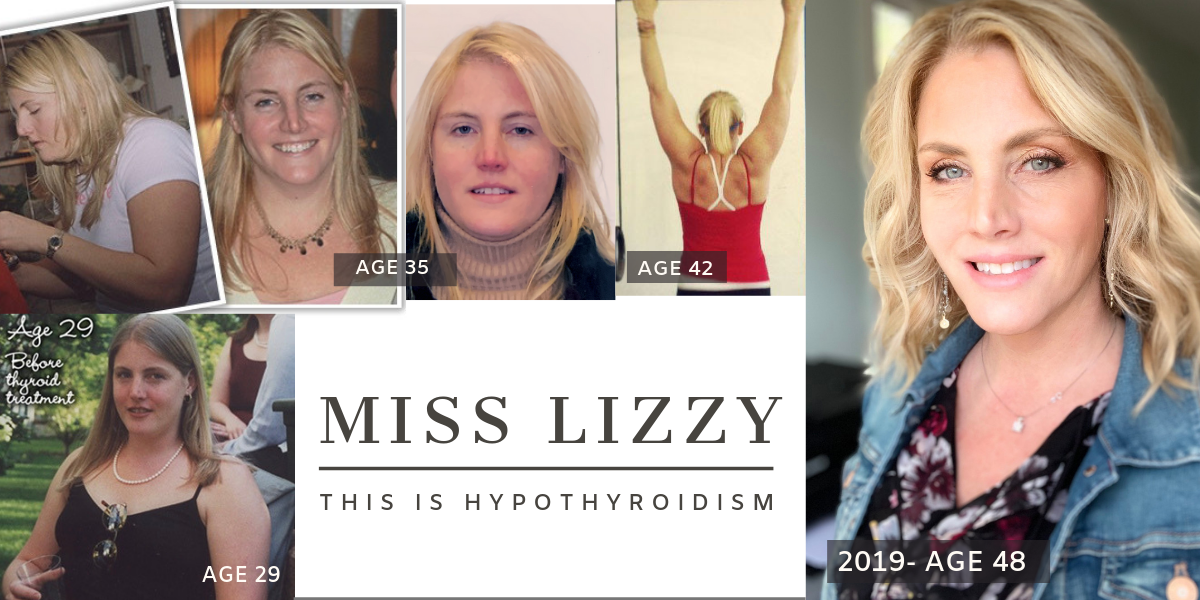 Miss Lizzy's Hypothyroidism Success Story